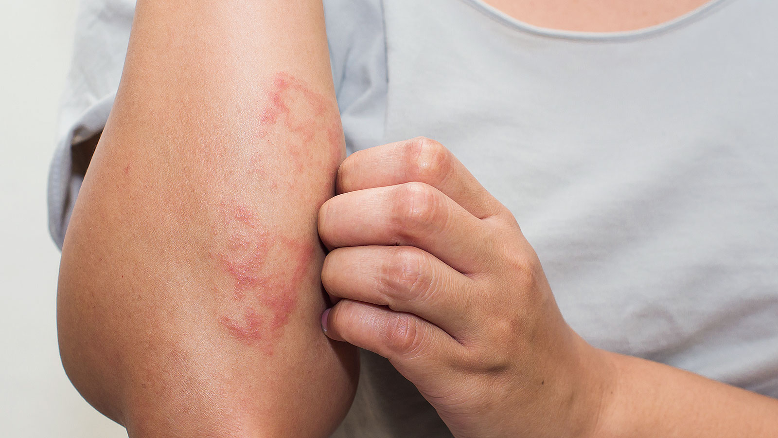 New study links this common skin condition with an increased risk in heart disease